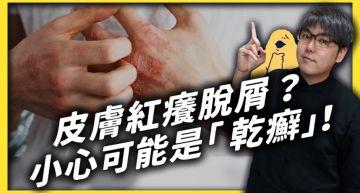 乾癬不會傳染!皮膚科醫師揭「很難根治」:成因是免疫系統失調