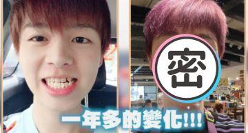 1年牙套!黃氏兄弟瑋瑋「驚人變化」曝光 下步計畫「戽斗掰掰」!