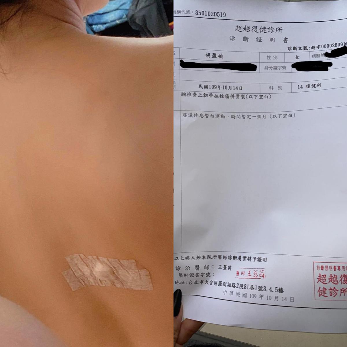 胸椎韌帶扭傷加骨裂!小禎13年後再挨一針 自曝診間狀況:當場嚇哭